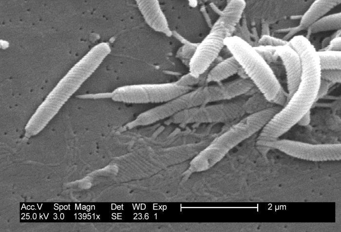Mastic Gum H pylori